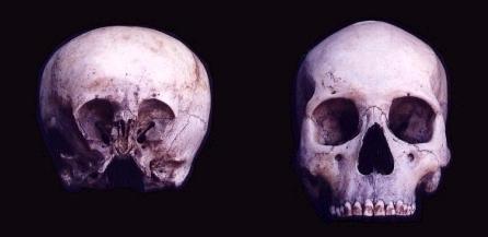 El cráneo de starchild: El niño de las estrellas | Asusta2