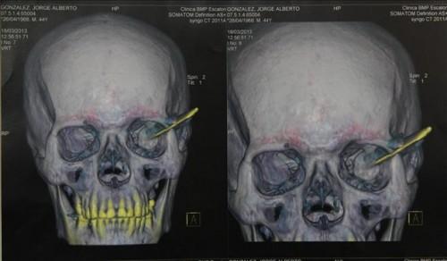 Medicos extraen cuchillo del craneo de un hmbre en El Salvador