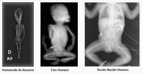 Comparacion del humanoide de Atacama
