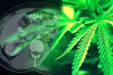 La marihuana combate el cáncer
