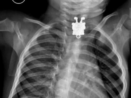 Radiografías insólitas 10