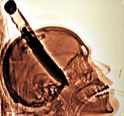 Radiografías insólitas 5