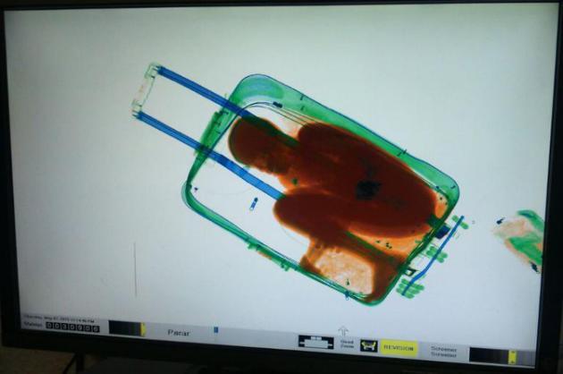rayos X niño de 8 años en una maleta