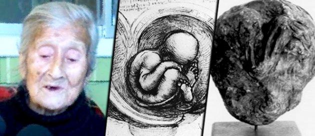 Feto momificado en el vientre de una ansiana chilena